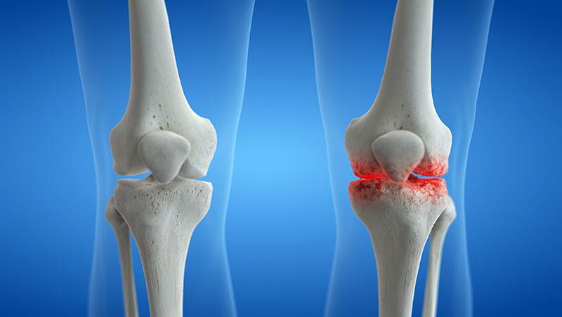 Arthritis_knee-joint1