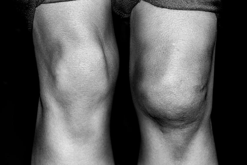 swollen_knee